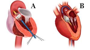 Diferentes abordagens de TAVI. Transapical (A) e Transfemoral (B)