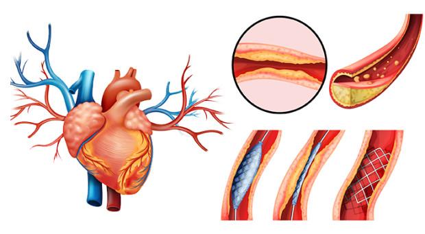 Aterosclerose coronária