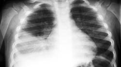 pneumonia_rx