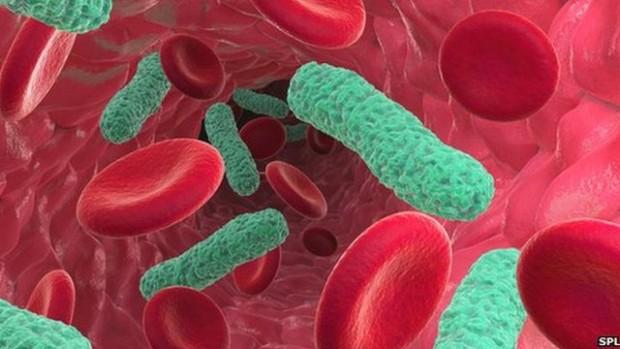 A sepse resulta da resposta inflamatória sistêmica do organismo frente a um processo infeccioso.