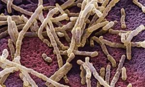 Microfotografia de bactérias causadoras de colite pseudomembranosa, o Clostridium difficile