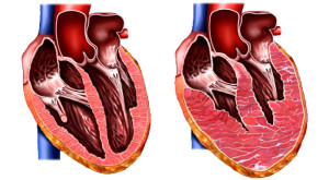 Imagem do coração normal (à esquerda) e de um coração com a massa dos ventrículos aumentadas (à direita)