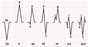 Complexos-QRS