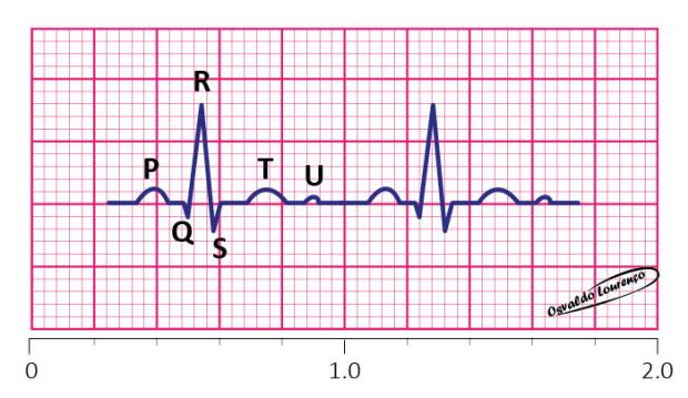Ondas-ECG
