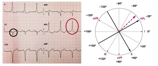 Determinação do eixo cardíaco pelo método II