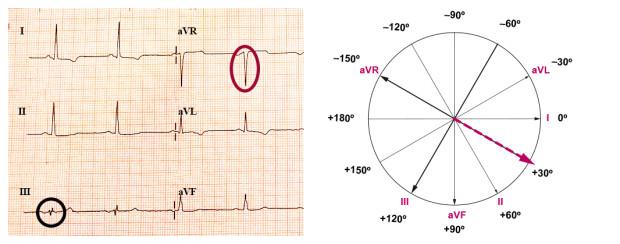 Determinação do eixo cardíaco pelo método I