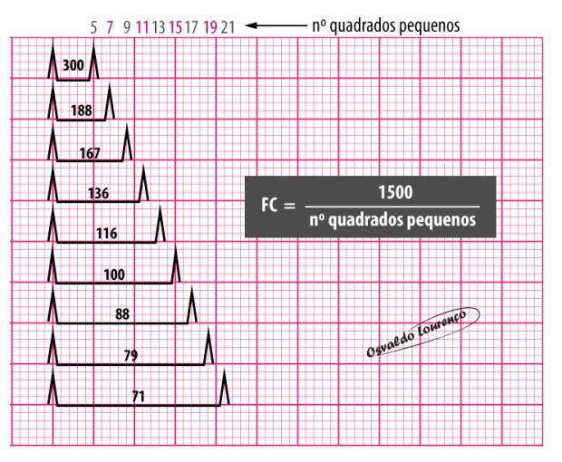 Determinação da Frequência Cardíaca